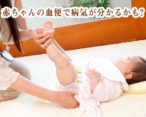 赤ちゃんの血便の原因~うんちの色・種類で分かる病気とは