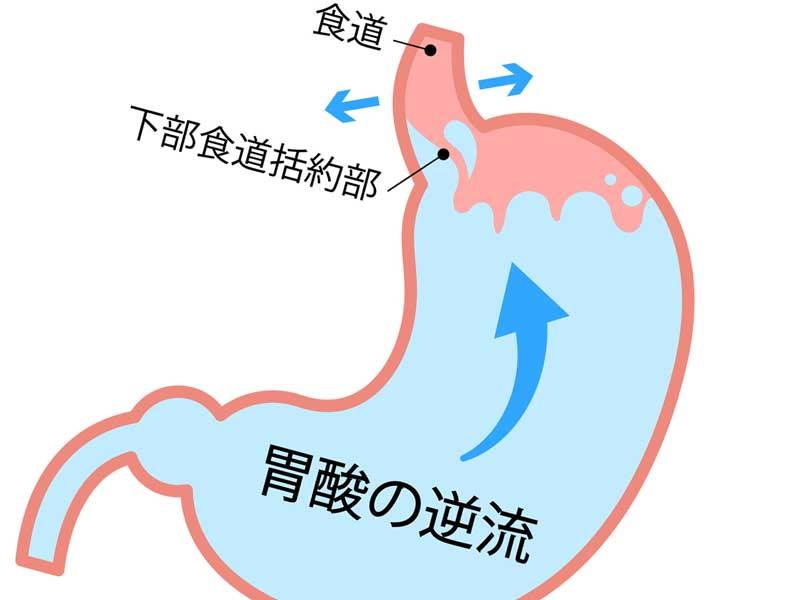 胃酸が逆流している胃のイラスト