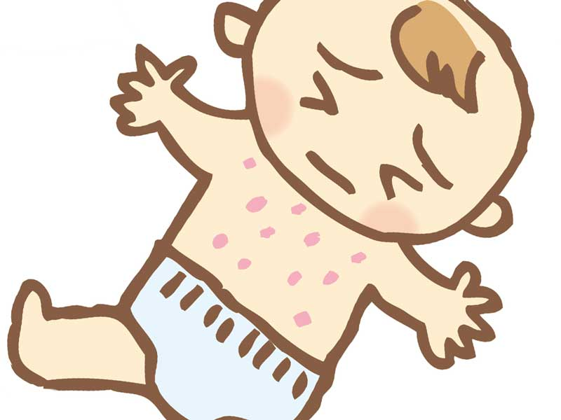 アレルギー症状の湿疹が出ている子供のイラスト