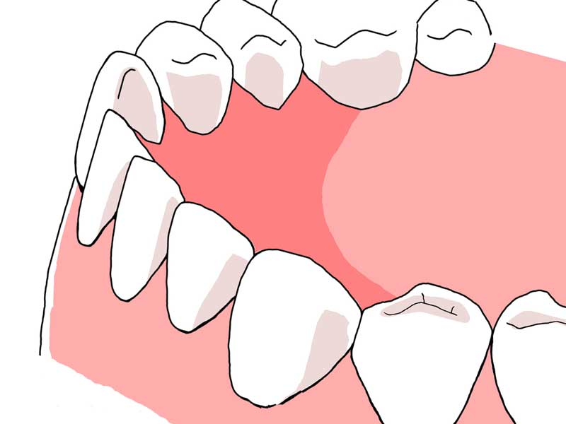 清潔な歯のイラスト