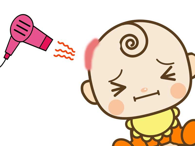 ドライヤーの熱で頭を火傷している赤ちゃんのイラスト