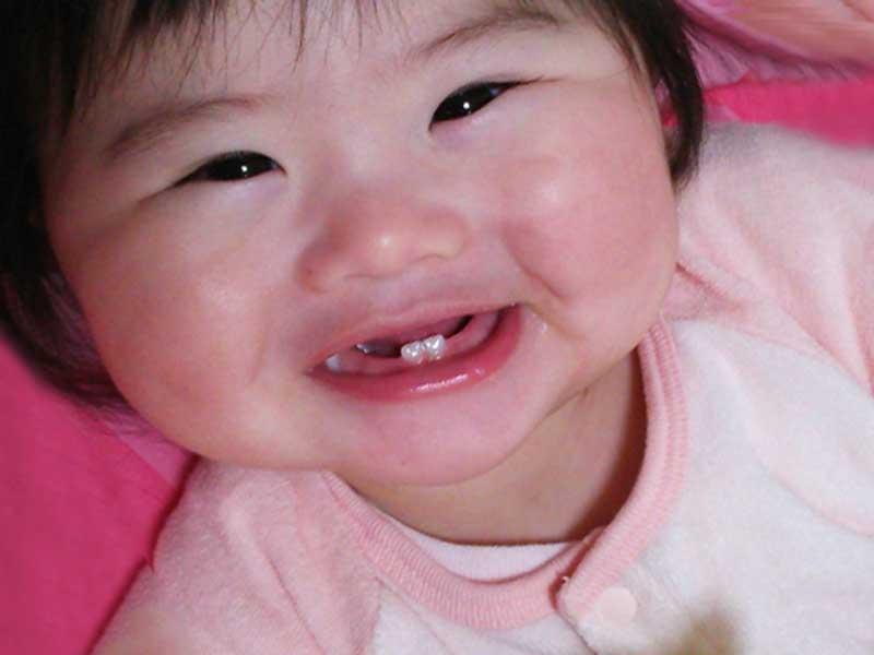 乳歯が入ってきている赤ちゃん