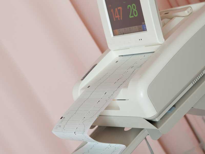 分娩監視装置