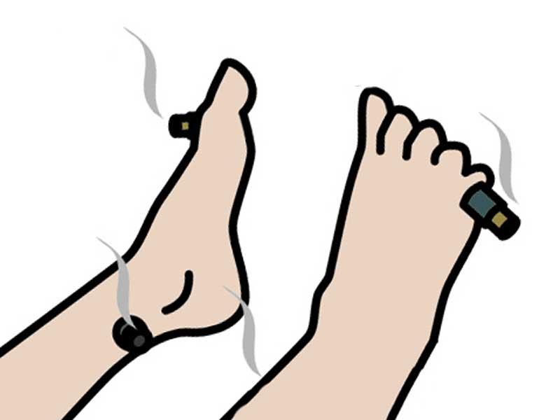 足のお灸治療のイラスト