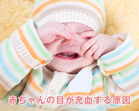 赤ちゃんの目の充血で病院に行くべき片目のみ・目やに症状