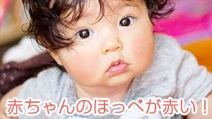 赤ちゃんのほっぺが赤い時は乾燥と刺激と病気を疑う!