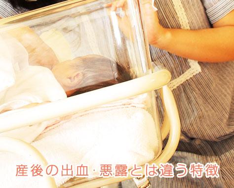 産後の出血が止まらない!出産後の悪露と不正出血の違い