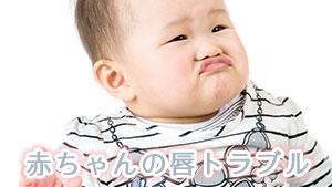 赤ちゃんの唇トラブルの原因とは?知っておきたい唇の病気