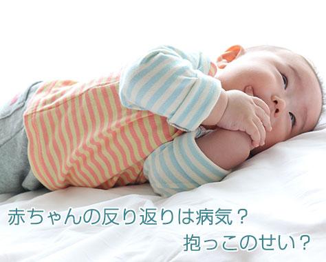 赤ちゃんの反り返りは病気?親の抱っこのせい?7つの原因