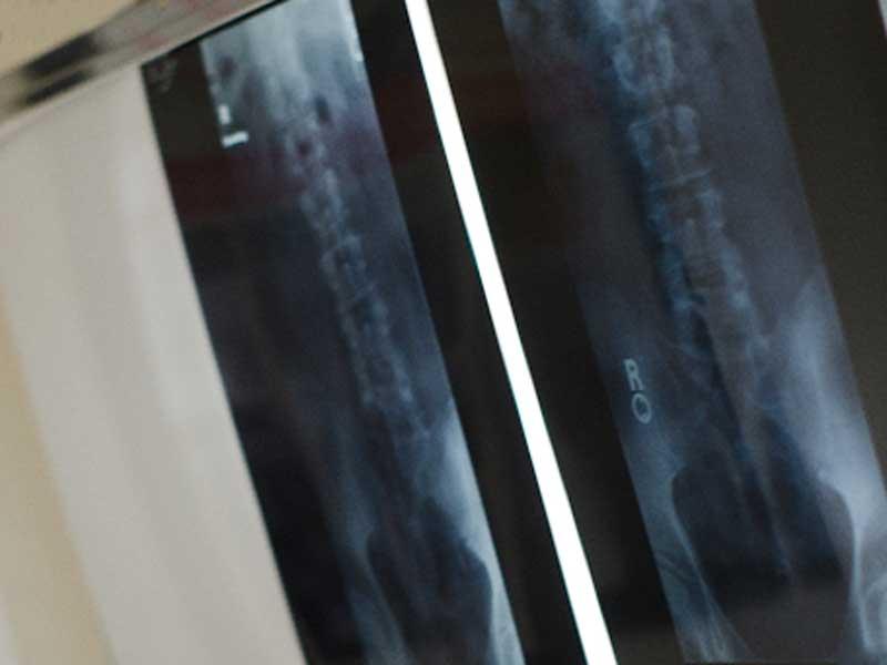 股関節のレントゲン