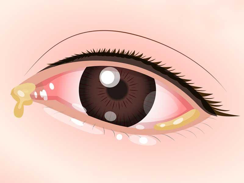 結膜炎の目のイラスト