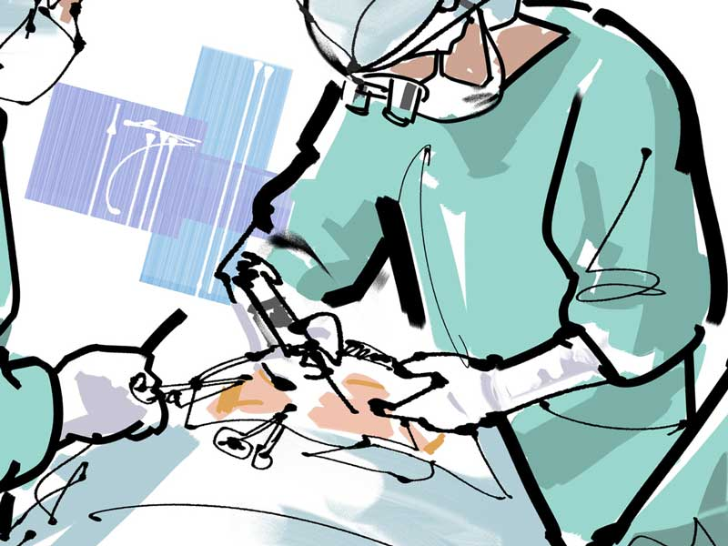 手術治療のイラスト