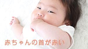 赤ちゃんの首が赤い!赤い湿疹ができる肌荒れの原因とは?