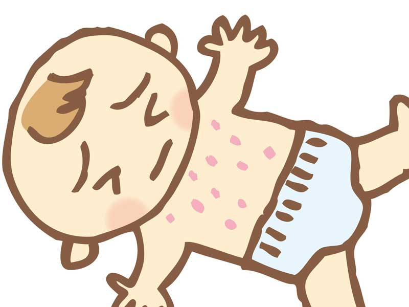 アトピー性皮膚炎の赤ちゃんのイラスト