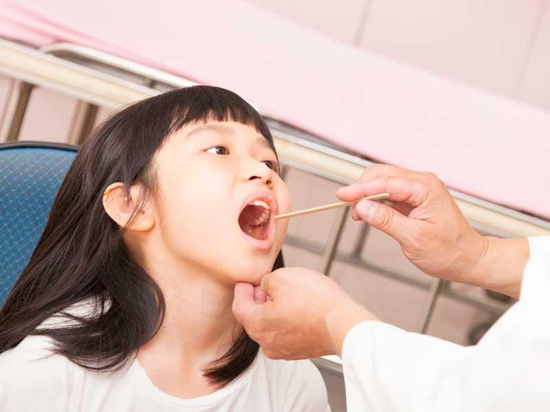 医師に舌を見てもらう子供