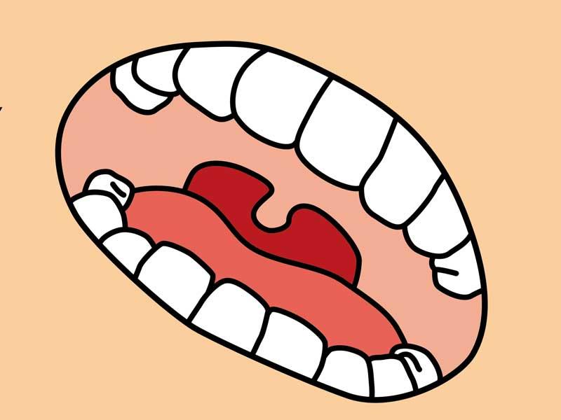 歯並びのイラスト