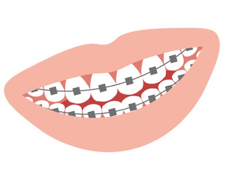 歯並びの矯正のイラスト
