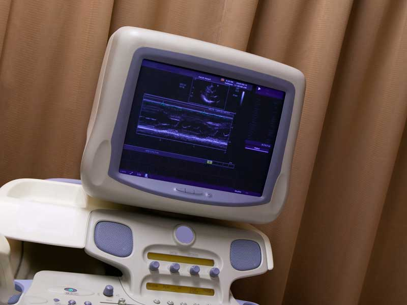 超音波検査の医療器械