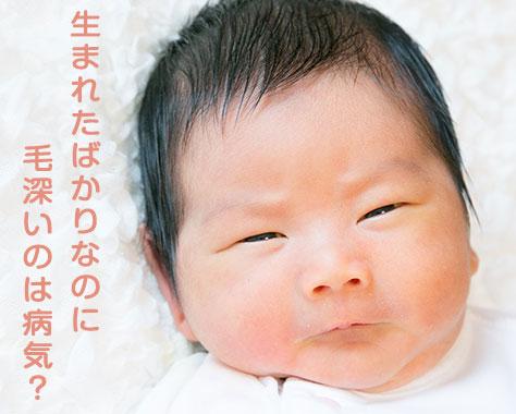 赤ちゃんが毛深いのは病気?遺伝?おでこ~足まで悩み解決