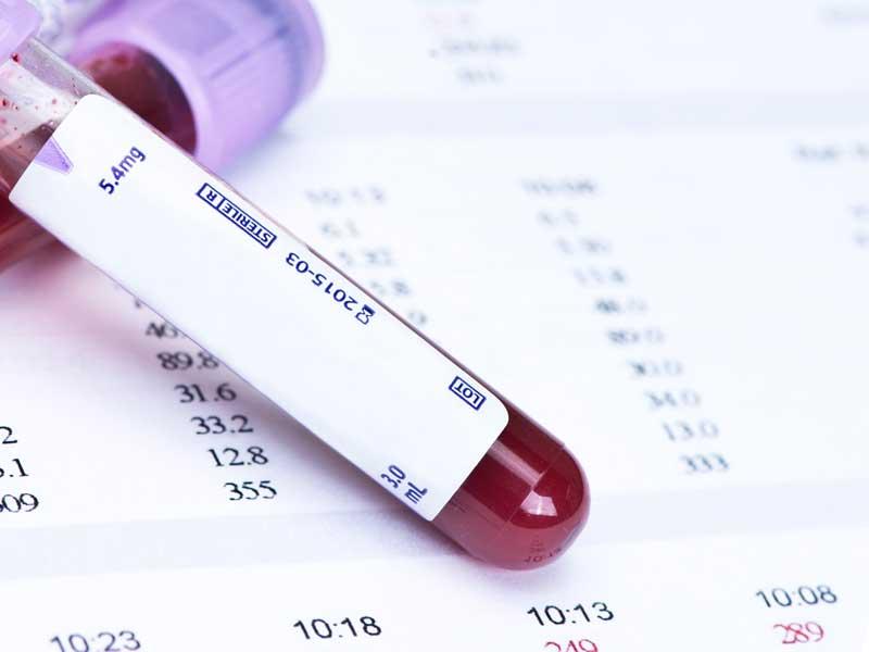 血液検査と結果