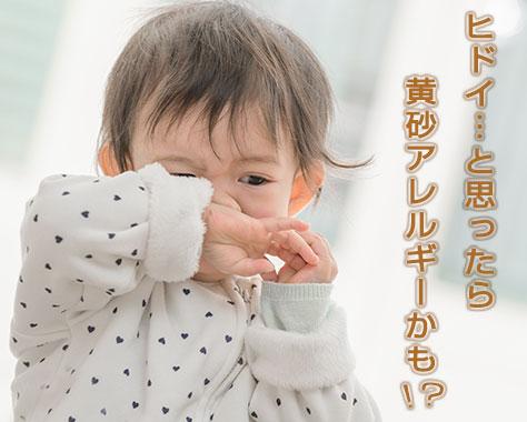 黄砂アレルギーを花粉症と間違えないで!子供からのSOS