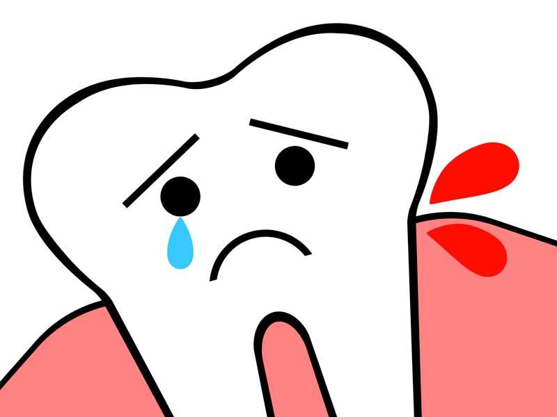 歯ぐきから出血のイラスト