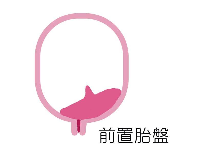 前置胎盤のイラスト