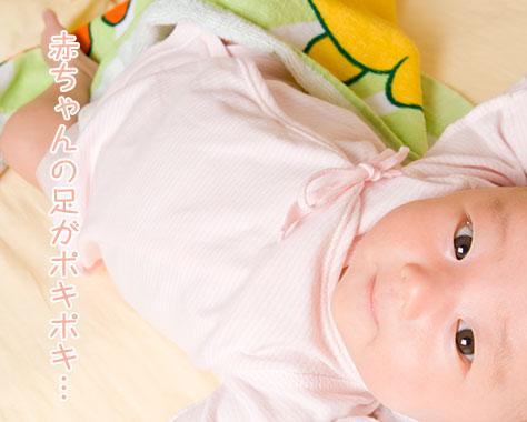 赤ちゃんの先天性股関節脱臼とは?ポキポキ音の症状に注意