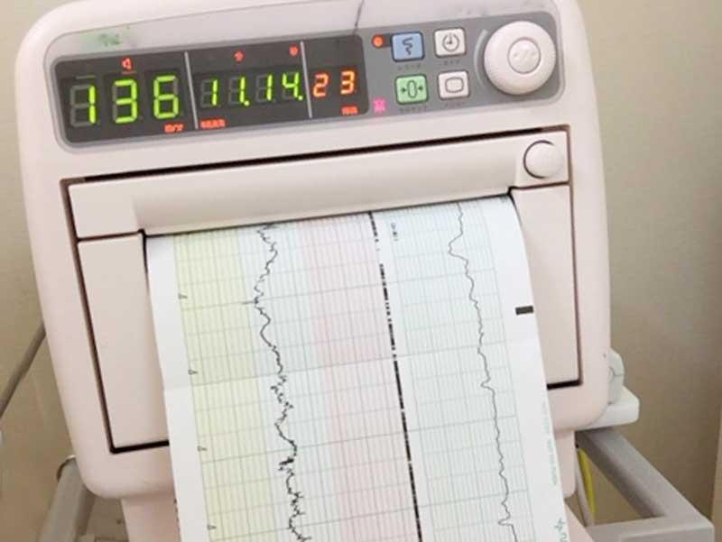 胎児の心拍数データ図