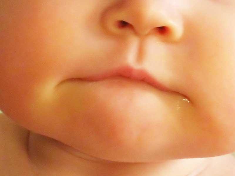 閉じている赤ちゃんの口
