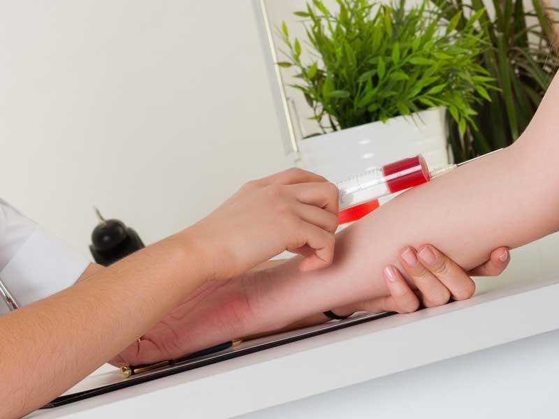 血液検査する女性