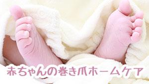 赤ちゃんの巻き爪の原因は?腫れや化膿は病院受診が必要?