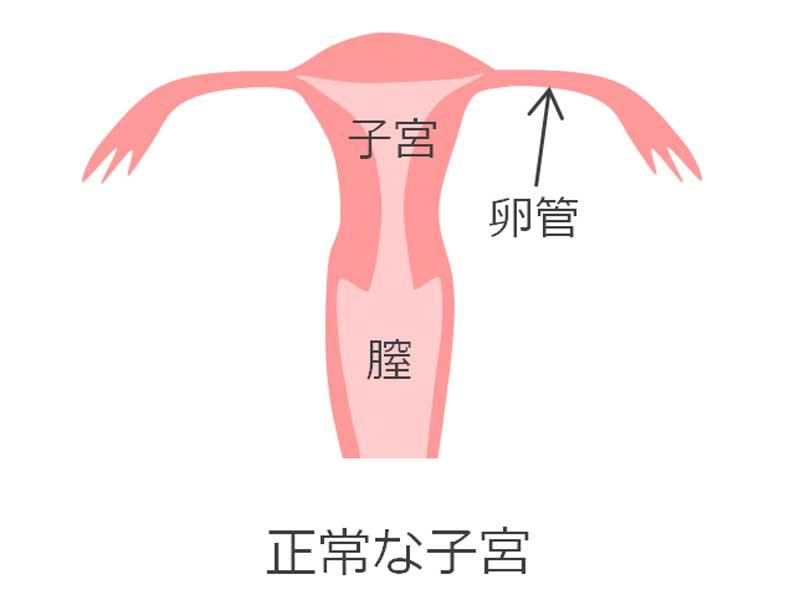 正常の子宮のイラスト