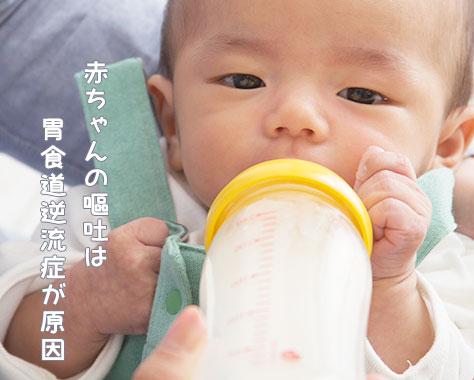 胃食道逆流症~赤ちゃんが母乳/ミルクを吐く症状に要注意