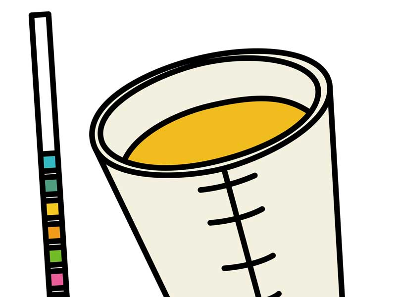 尿検査のイラスト