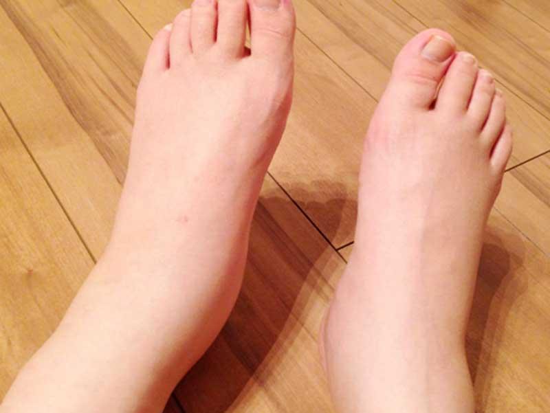 浮腫んでいる妊婦さんの足