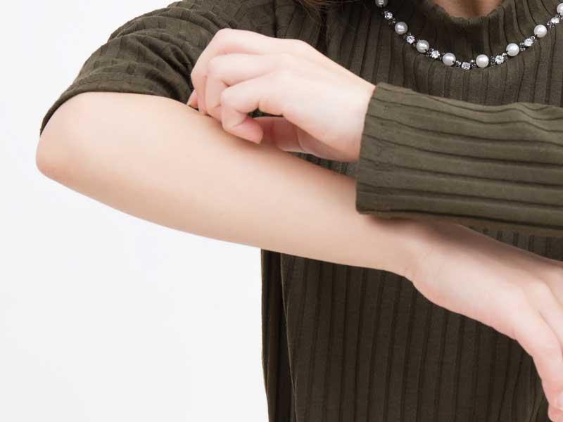 腕がかゆい妊婦さん