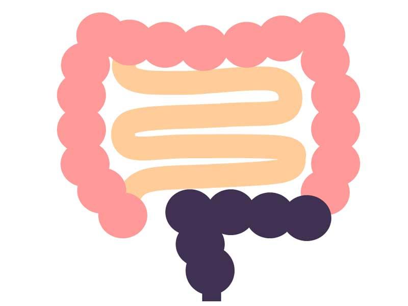 ヒルシュスプルング病の短域型のイラスト