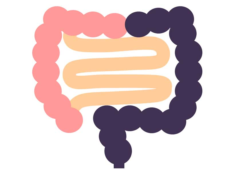 ヒルシュスプルング病の長域型のイラスト