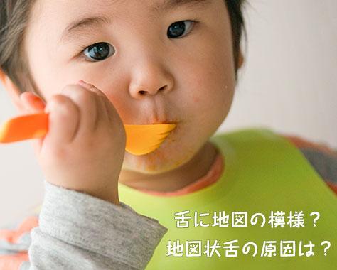 地図状舌の原因は?治療法がない幼児に多い舌炎の対処法