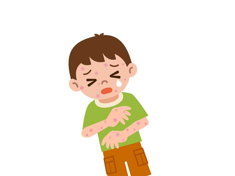アレルギーで発疹が出ている子供のイラスト