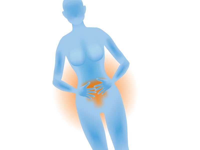 卵巣炎をイメージさせるイラスト
