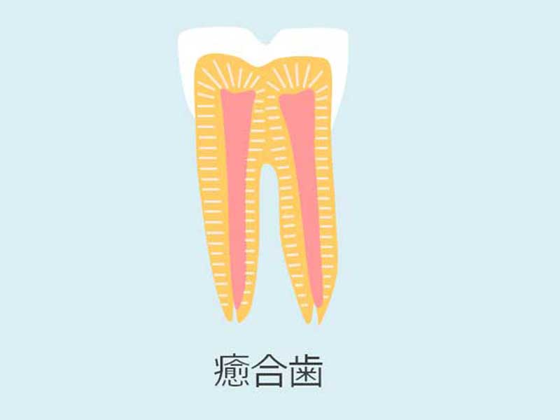 癒合歯のイラスト
