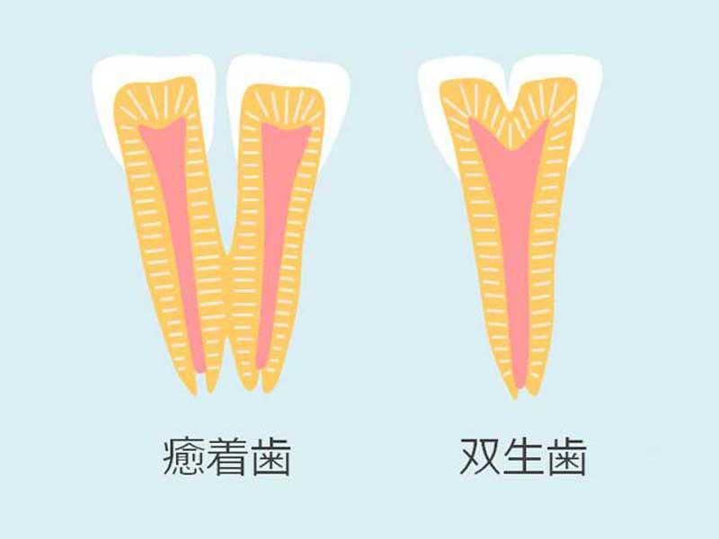 癒着歯と双生歯のイラスト