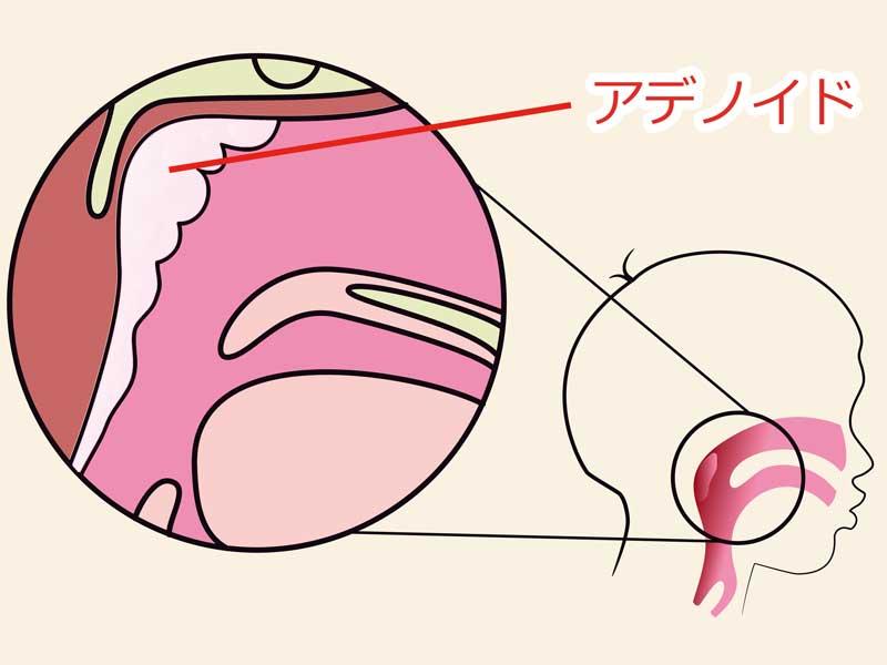 アデノイド部位説明のイラスト