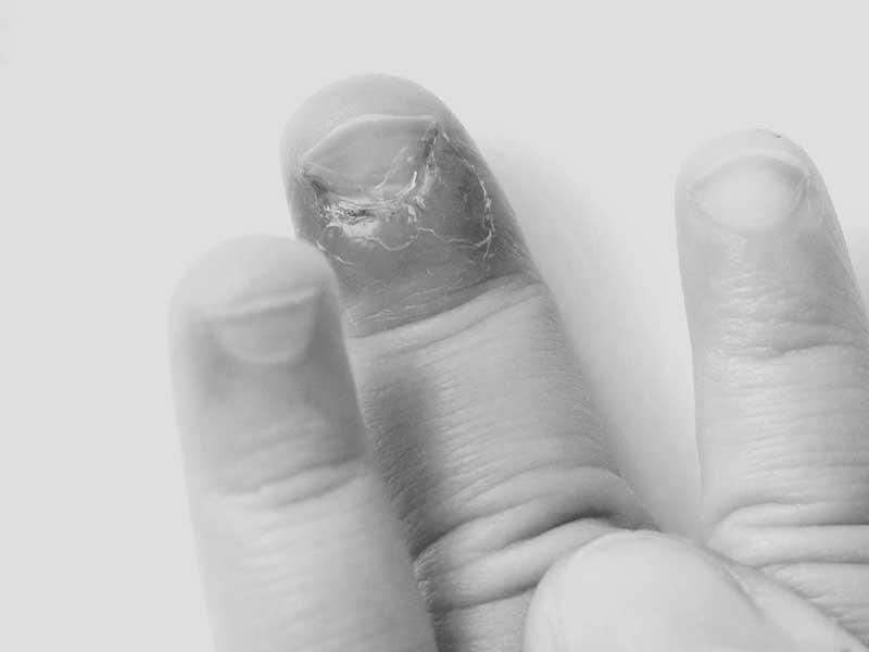 化膿した子供の指