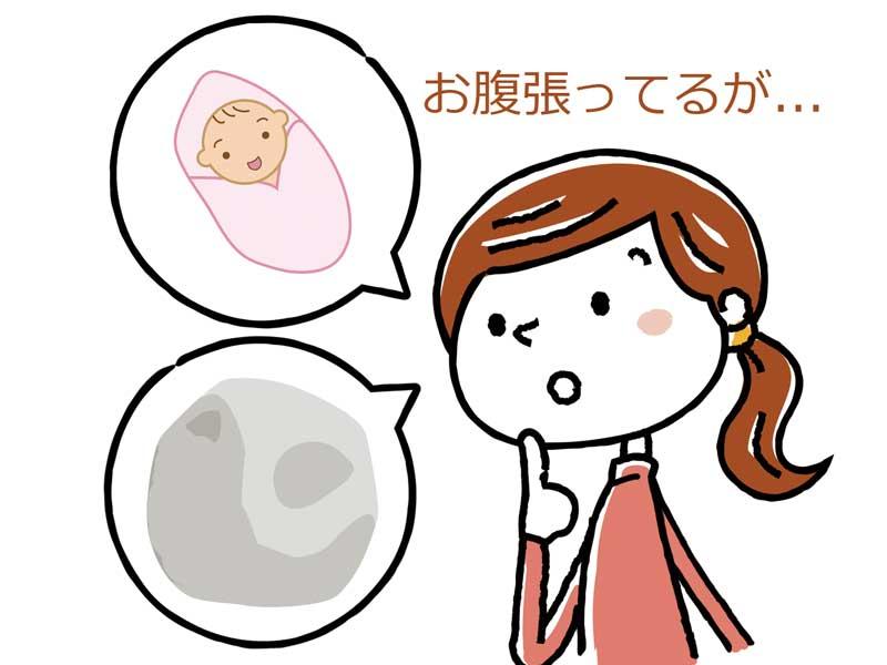 お腹が張っている妊婦さんのイラスト