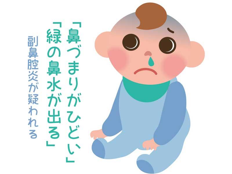 鼻水が出る赤ちゃんのイラスト