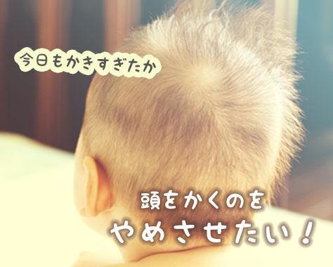 赤ちゃんが頭をかくのはなぜ?知っておきたいかゆみ対策