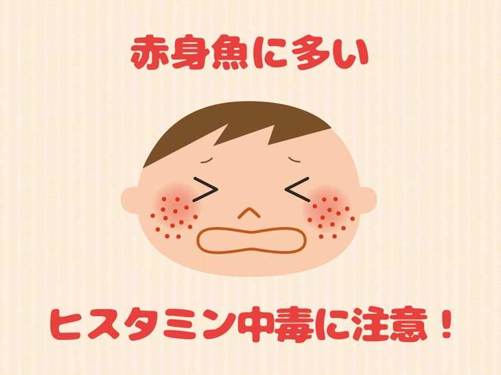 アレルギーの子供のイラスト
